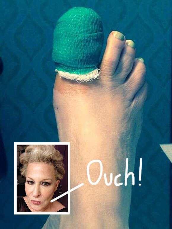 Bette Midler suffered a nasty toe injury during her stay in Texas!
